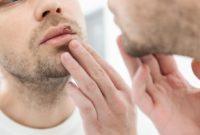 Penyebab dan Gejala Penyakit Herpes (2)