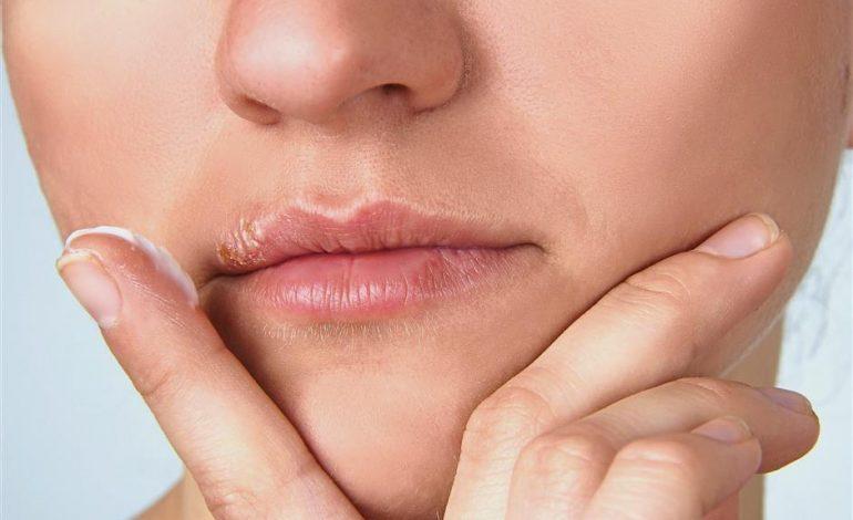 Penyebab dan Gejala Penyakit Herpes (5)